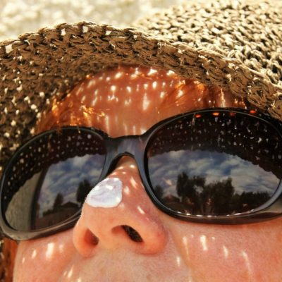 5 Simple Home Remedies For Treating Sunburns